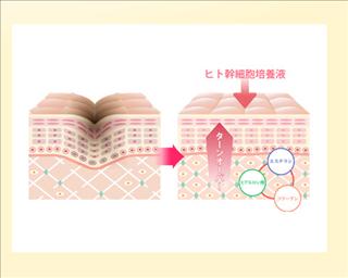 エクラトーキョープレミアムエッセンス,乾燥,幹細胞コスメ,口コミ